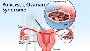 pcos-and-infertility